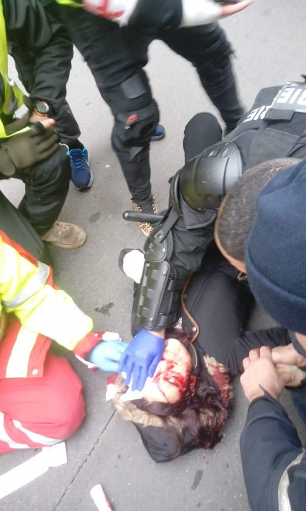 Yellow Vest Female Demonstrator Seriously Injured In Eye