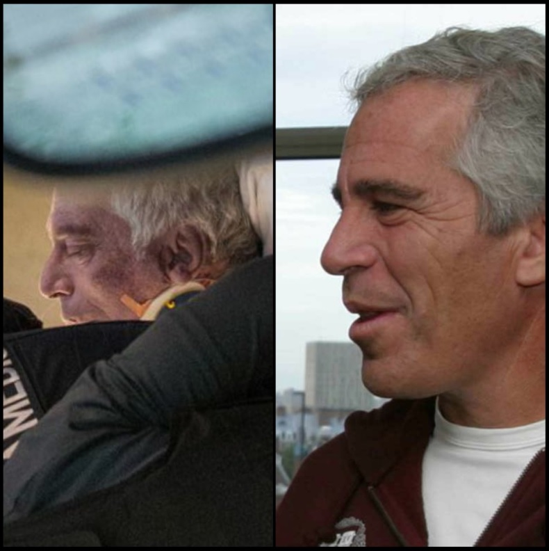 Jeffrey Epstein On Stretcher After Suicide Photo Comparison